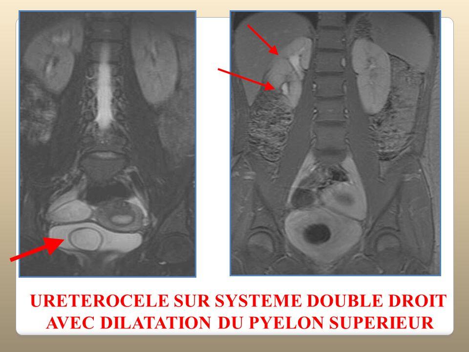 URETEROCELE SUR SYSTEME DOUBLE DROIT AVEC DILATATION DU PYELON SUPERIEUR