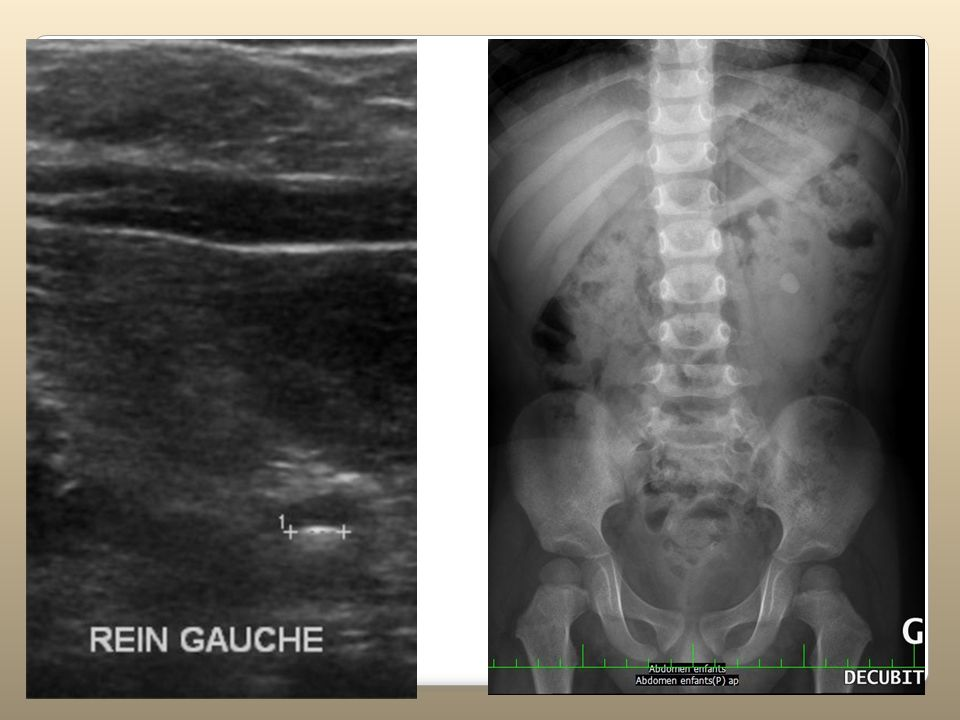 GRADES DES REFLUX I: pas jusquau rein II: jusquaux cavités intra-renales sans dilatation III: dilatation - concavité des fonds de calices conservée IV: dilatation importante & convexité des fonds de calices V: dilatation importante & uretère tortueux