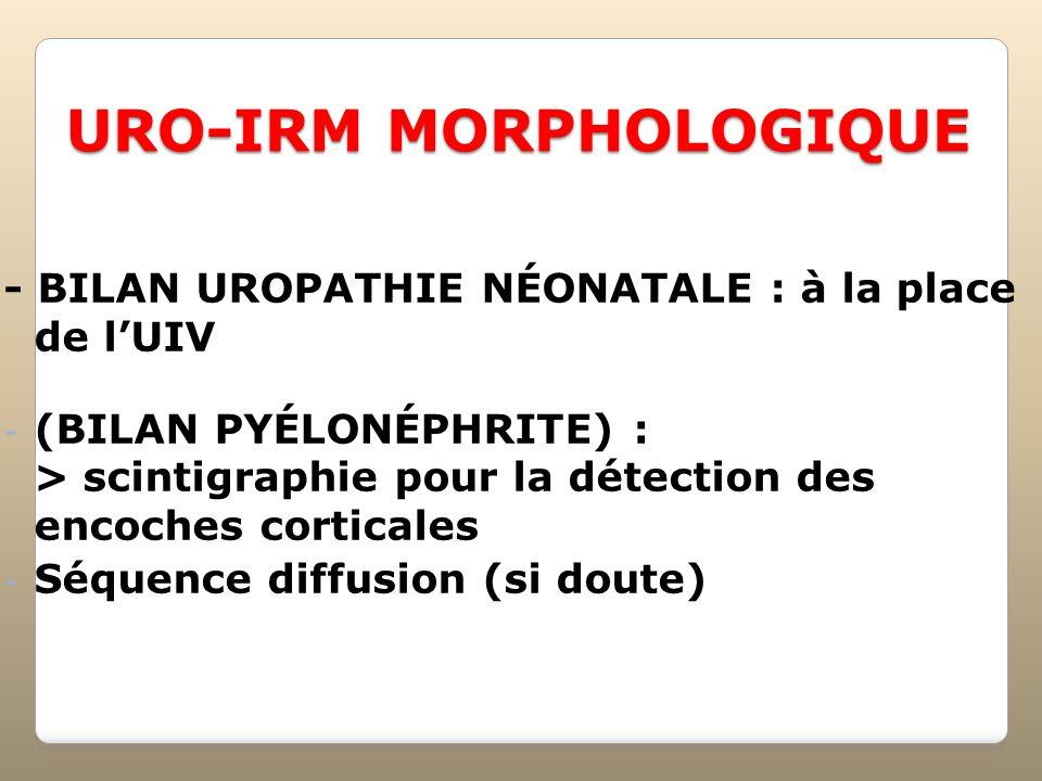 URO-IRM MORPHOLOGIQUE - BILAN UROPATHIE NÉONATALE : à la place de lUIV - (BILAN PYÉLONÉPHRITE) : > scintigraphie pour la détection des encoches cortic