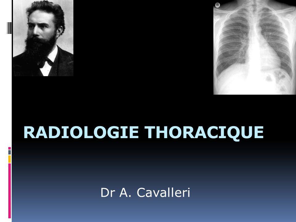 RADIOLOGIE THORACIQUE Dr A. Cavalleri