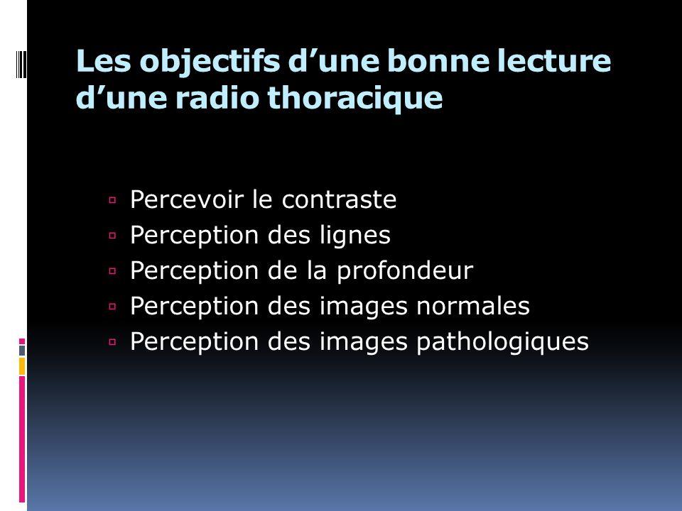 Les objectifs dune bonne lecture dune radio thoracique Percevoir le contraste Perception des lignes Perception de la profondeur Perception des images