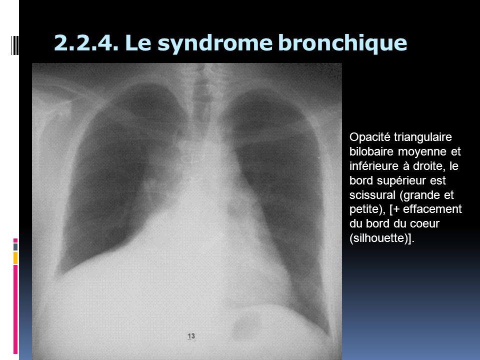 2.2.4. Le syndrome bronchique Opacité triangulaire bilobaire moyenne et inférieure à droite, le bord supérieur est scissural (grande et petite), [+ ef