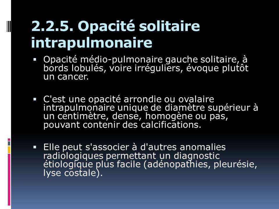Opacité médio-pulmonaire gauche solitaire, à bords lobulés, voire irréguliers, évoque plutôt un cancer. C'est une opacité arrondie ou ovalaire intrapu