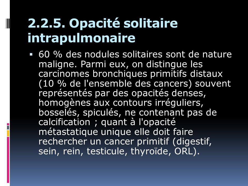 2.2.5. Opacité solitaire intrapulmonaire 60 % des nodules solitaires sont de nature maligne. Parmi eux, on distingue les carcinomes bronchiques primit