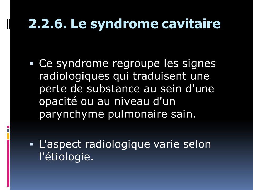 2.2.6. Le syndrome cavitaire Ce syndrome regroupe les signes radiologiques qui traduisent une perte de substance au sein d'une opacité ou au niveau d'
