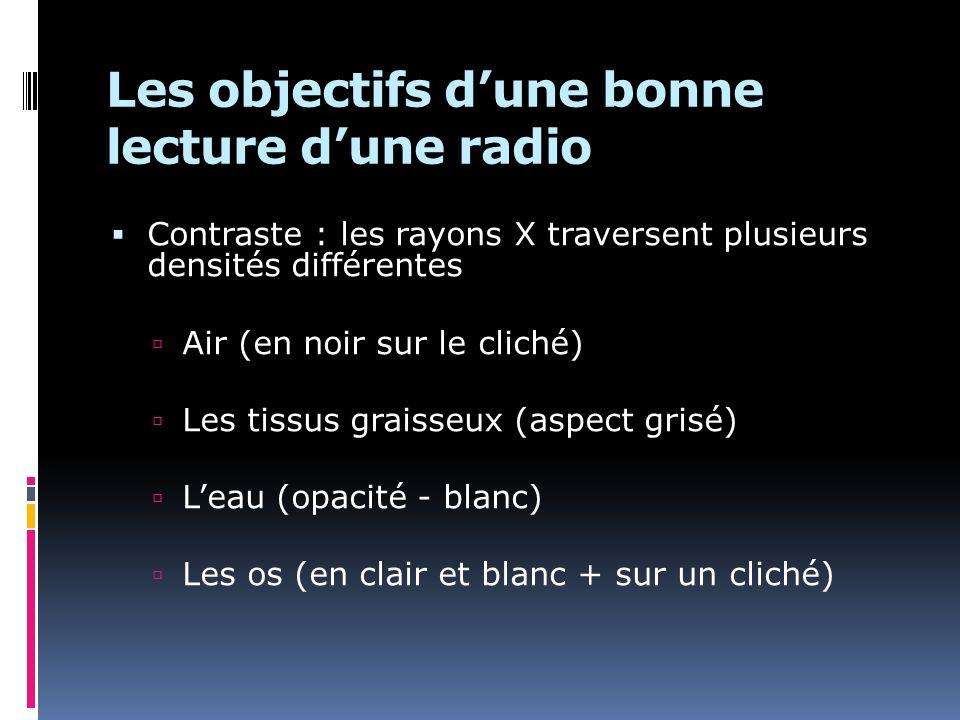 Les objectifs dune bonne lecture dune radio Contraste : les rayons X traversent plusieurs densités différentes Air (en noir sur le cliché) Les tissus graisseux (aspect grisé) Leau (opacité - blanc) Les os (en clair et blanc + sur un cliché)