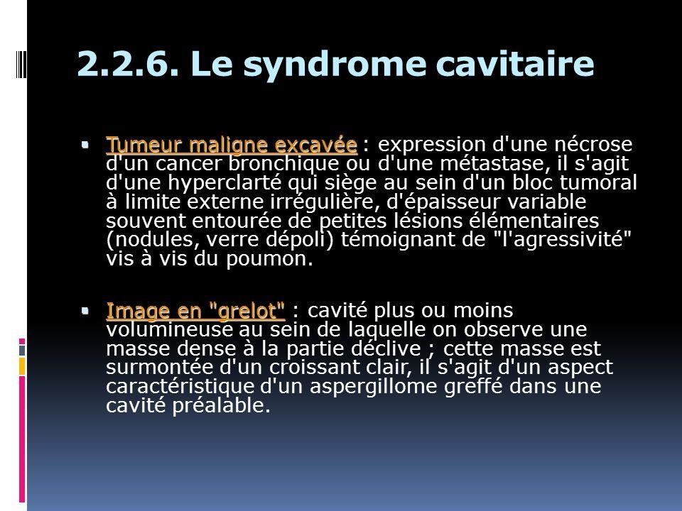 Tumeur maligne excavée Tumeur maligne excavée : expression d'une nécrose d'un cancer bronchique ou d'une métastase, il s'agit d'une hyperclarté qui si