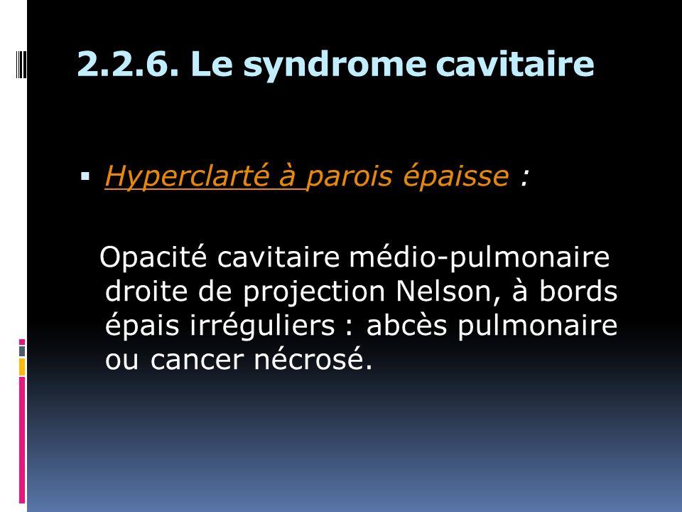2.2.6. Le syndrome cavitaire Hyperclarté à parois épaisse : Opacité cavitaire médio-pulmonaire droite de projection Nelson, à bords épais irréguliers
