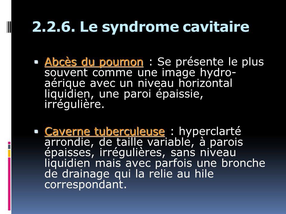 2.2.6. Le syndrome cavitaire Abcès du poumon Abcès du poumon : Se présente le plus souvent comme une image hydro- aérique avec un niveau horizontal li