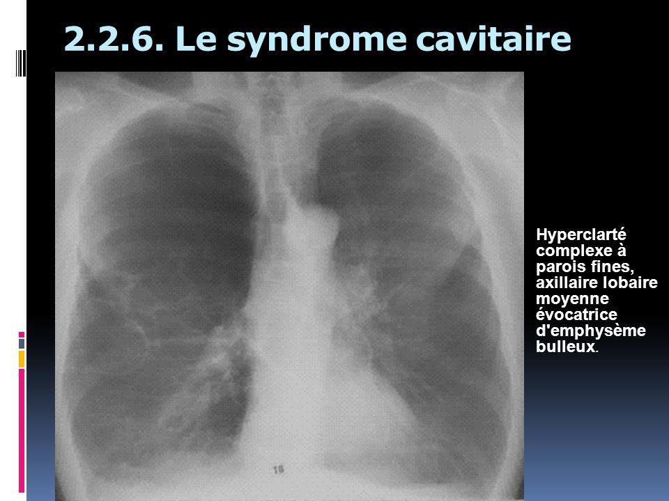 2.2.6. Le syndrome cavitaire Hyperclarté complexe à parois fines, axillaire lobaire moyenne évocatrice d'emphysème bulleux.