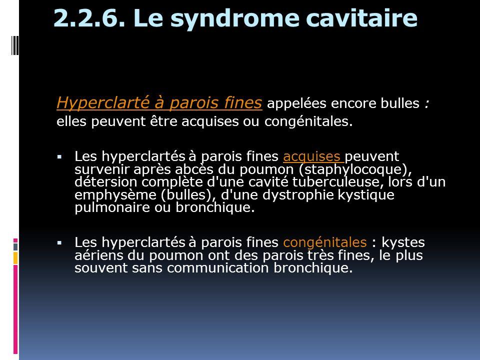 2.2.6. Le syndrome cavitaire Hyperclarté à parois fines appelées encore bulles : elles peuvent être acquises ou congénitales. Les hyperclartés à paroi
