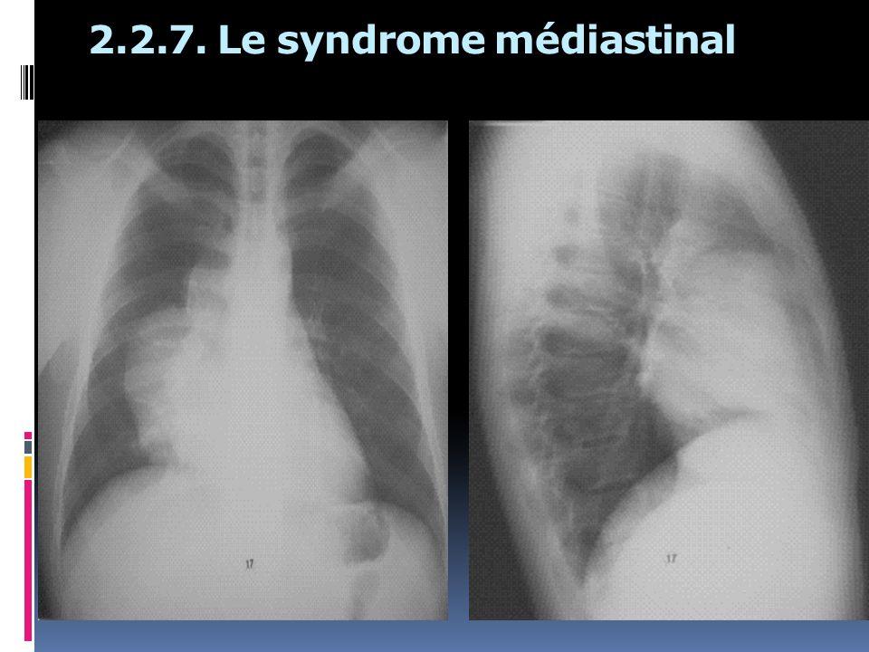 2.2.7. Le syndrome médiastinal