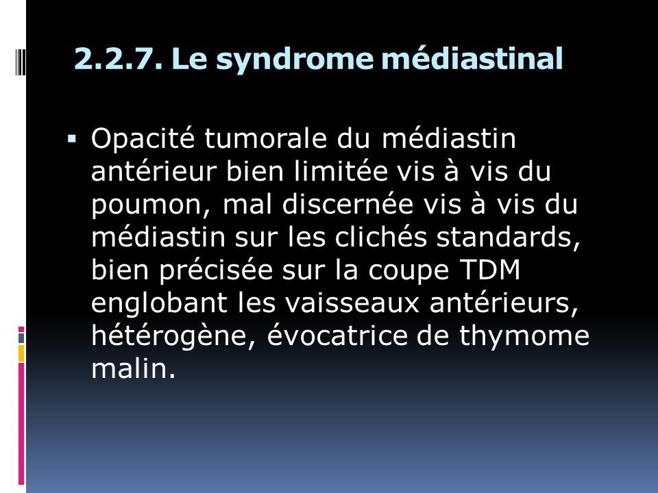 Opacité tumorale du médiastin antérieur bien limitée vis à vis du poumon, mal discernée vis à vis du médiastin sur les clichés standards, bien précisé