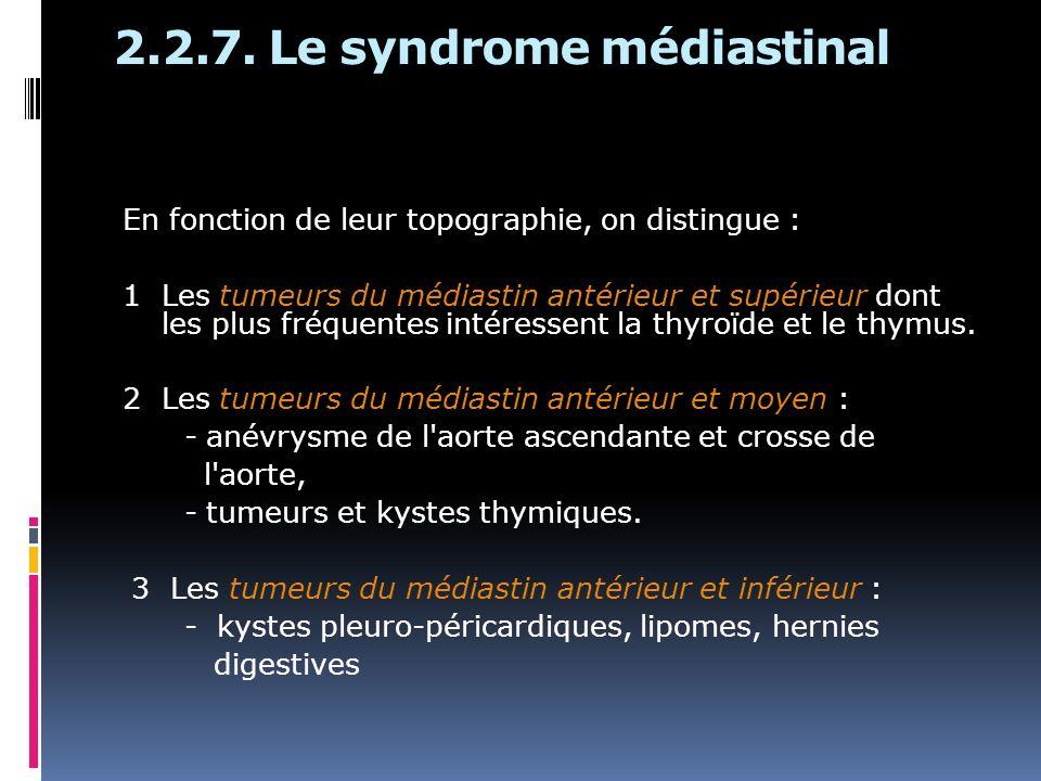 2.2.7. Le syndrome médiastinal En fonction de leur topographie, on distingue : 1 Les tumeurs du médiastin antérieur et supérieur dont les plus fréquen