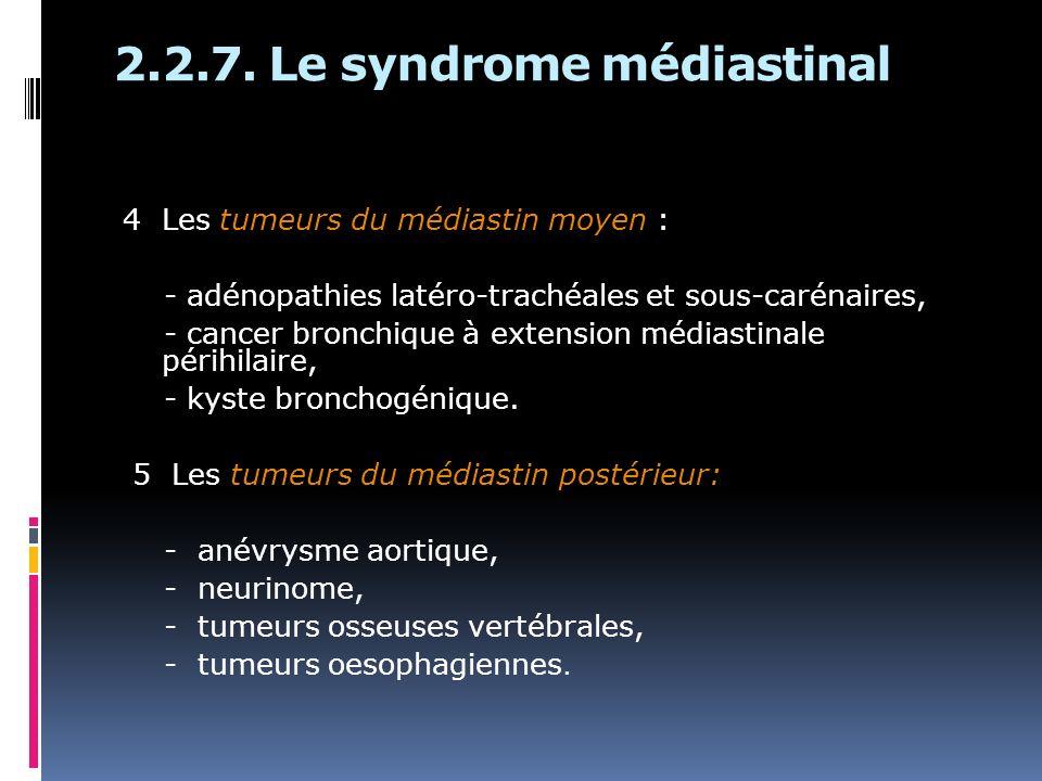 2.2.7. Le syndrome médiastinal 4 Les tumeurs du médiastin moyen : - adénopathies latéro-trachéales et sous-carénaires, - cancer bronchique à extension