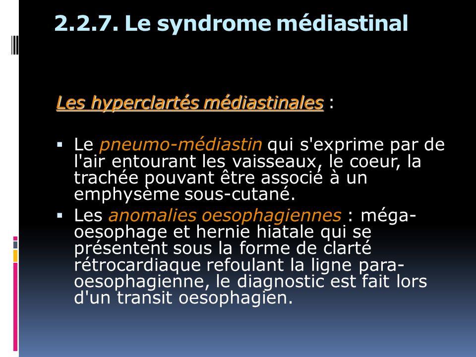 2.2.7. Le syndrome médiastinal Les hyperclartés médiastinales Les hyperclartés médiastinales : Le pneumo-médiastin qui s'exprime par de l'air entouran