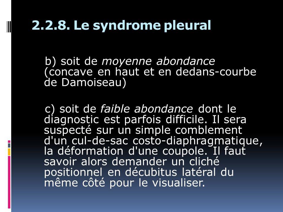 b) soit de moyenne abondance (concave en haut et en dedans-courbe de Damoiseau) c) soit de faible abondance dont le diagnostic est parfois difficile.