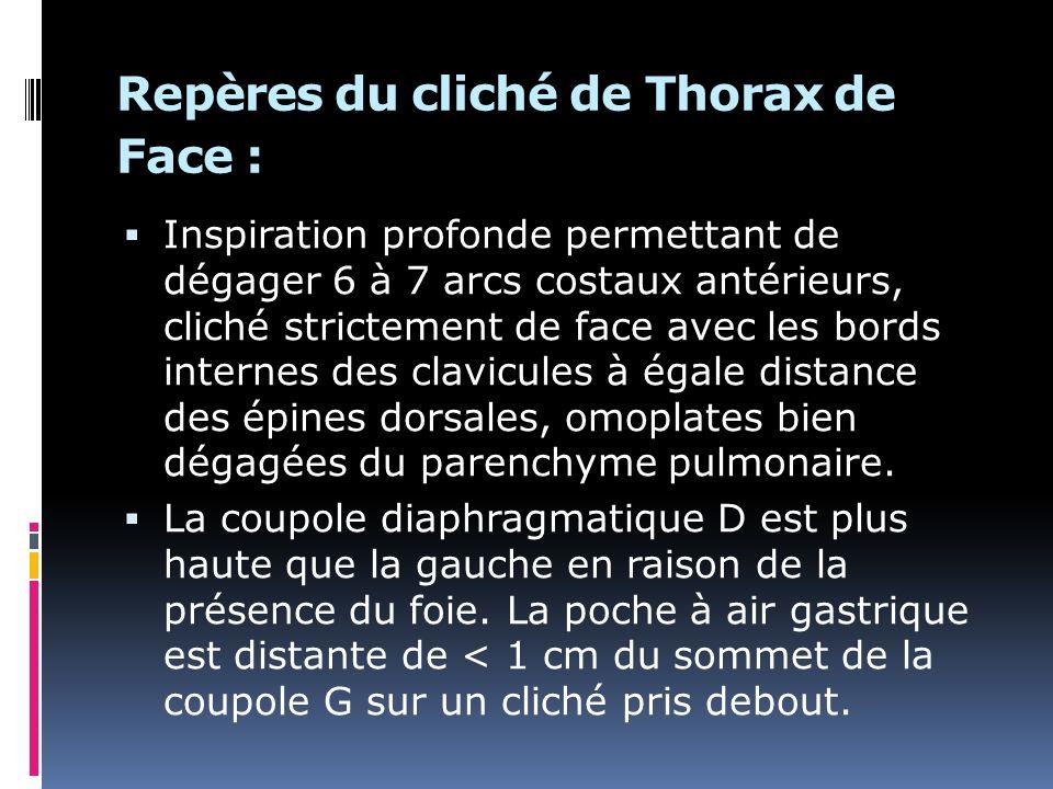 Repères du cliché de Thorax de Face : Inspiration profonde permettant de dégager 6 à 7 arcs costaux antérieurs, cliché strictement de face avec les bords internes des clavicules à égale distance des épines dorsales, omoplates bien dégagées du parenchyme pulmonaire.