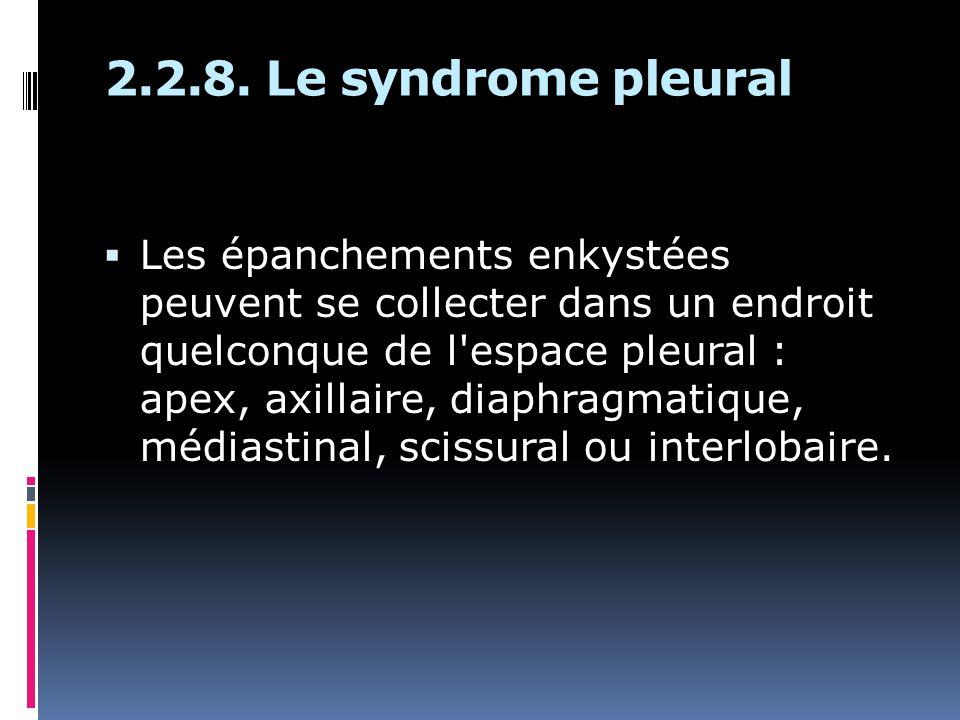 2.2.8. Le syndrome pleural Les épanchements enkystées peuvent se collecter dans un endroit quelconque de l'espace pleural : apex, axillaire, diaphragm