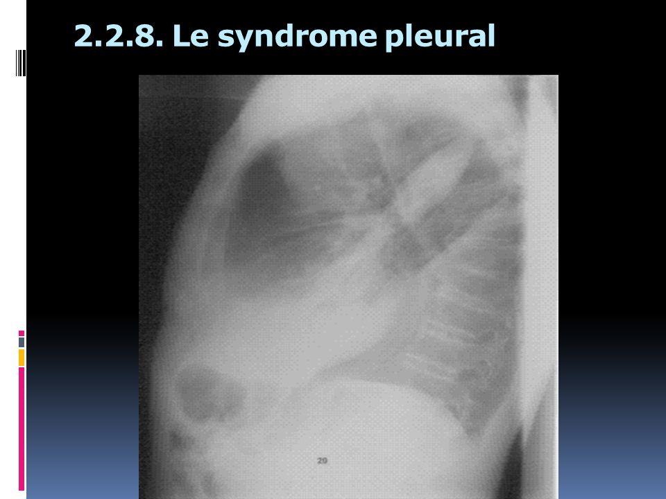 2.2.8. Le syndrome pleural
