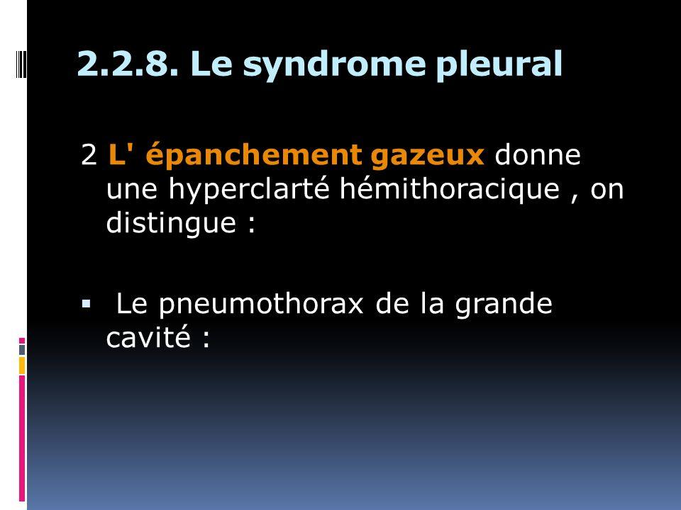 2.2.8. Le syndrome pleural 2 L' épanchement gazeux donne une hyperclarté hémithoracique, on distingue : Le pneumothorax de la grande cavité :
