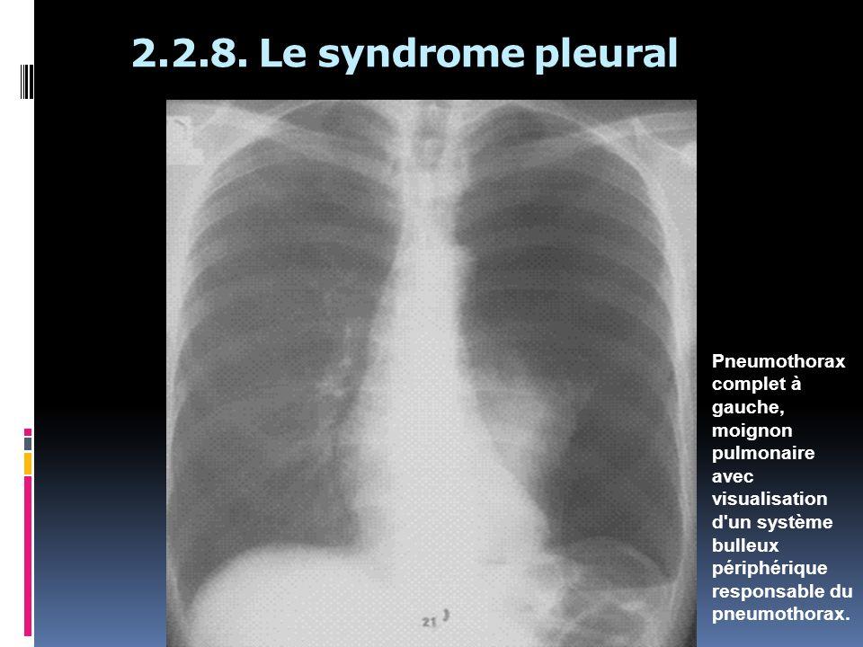 2.2.8. Le syndrome pleural Pneumothorax complet à gauche, moignon pulmonaire avec visualisation d'un système bulleux périphérique responsable du pneum