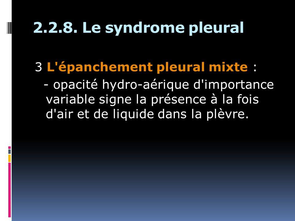 3 L épanchement pleural mixte : - opacité hydro-aérique d importance variable signe la présence à la fois d air et de liquide dans la plèvre.