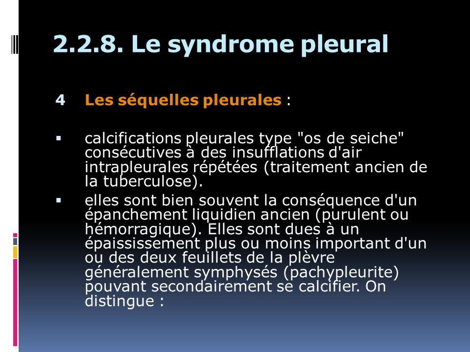 4 Les séquelles pleurales : calcifications pleurales type os de seiche consécutives à des insufflations d air intrapleurales répétées (traitement ancien de la tuberculose).