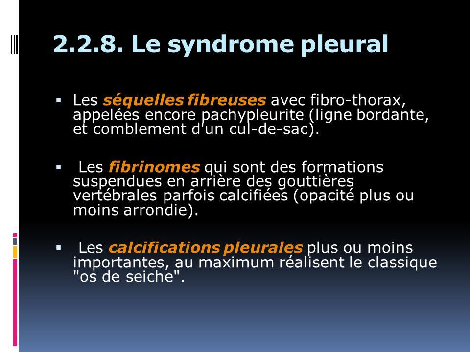 2.2.8. Le syndrome pleural Les séquelles fibreuses avec fibro-thorax, appelées encore pachypleurite (ligne bordante, et comblement d'un cul-de-sac). L