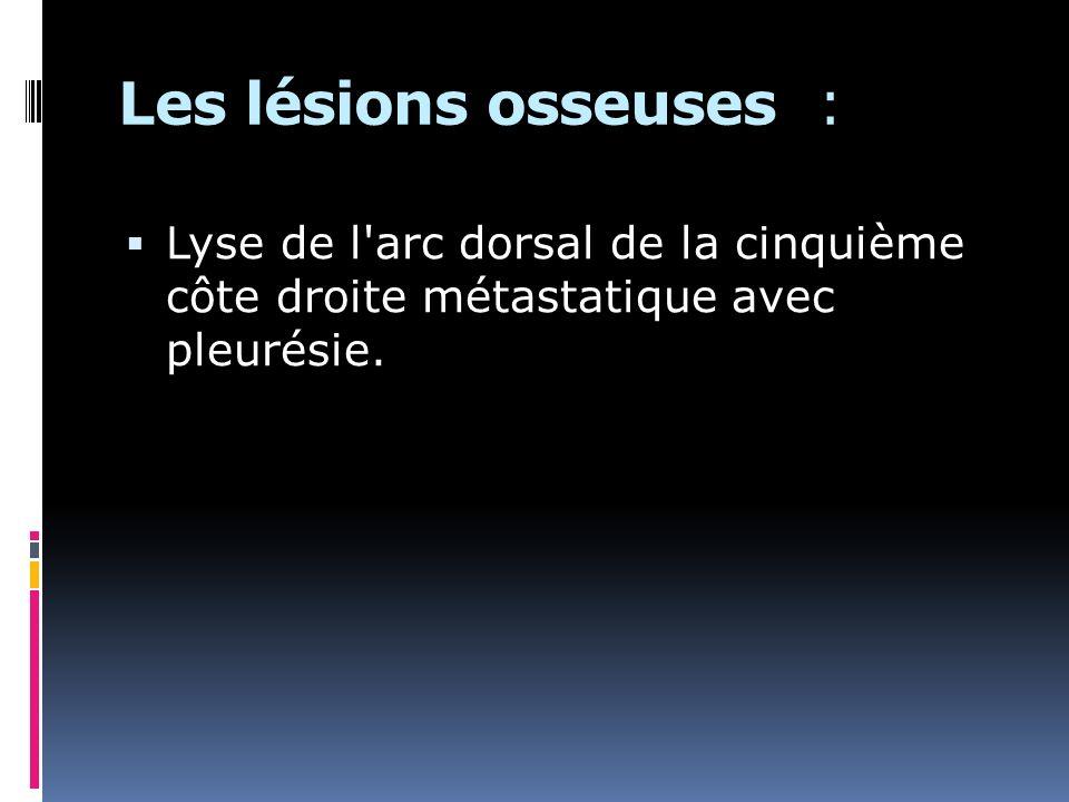 Lyse de l arc dorsal de la cinquième côte droite métastatique avec pleurésie.