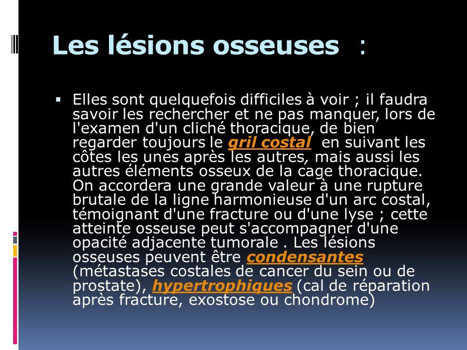 Les lésions osseuses : Elles sont quelquefois difficiles à voir ; il faudra savoir les rechercher et ne pas manquer, lors de l'examen d'un cliché thor