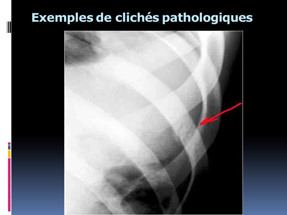 Exemples de clichés pathologiques