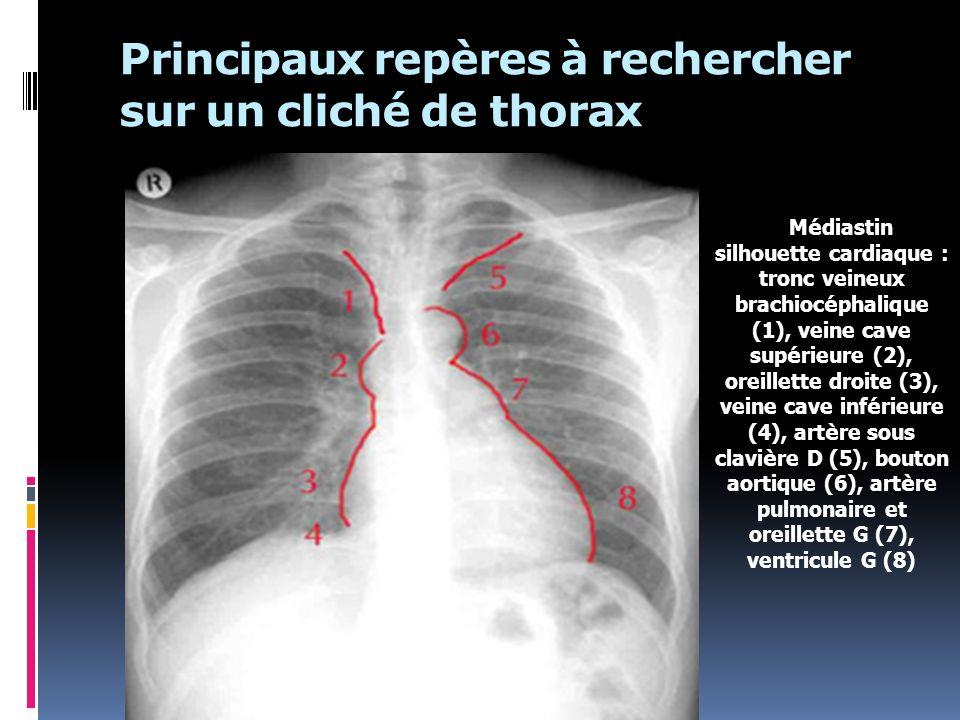 Principaux repères à rechercher sur un cliché de thorax M é diastin silhouette cardiaque : tronc veineux brachioc é phalique (1), veine cave sup é rie