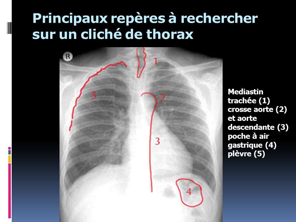 Principaux repères à rechercher sur un cliché de thorax Mediastin trach é e (1) crosse aorte (2) et aorte descendante (3) poche à air gastrique (4) pl