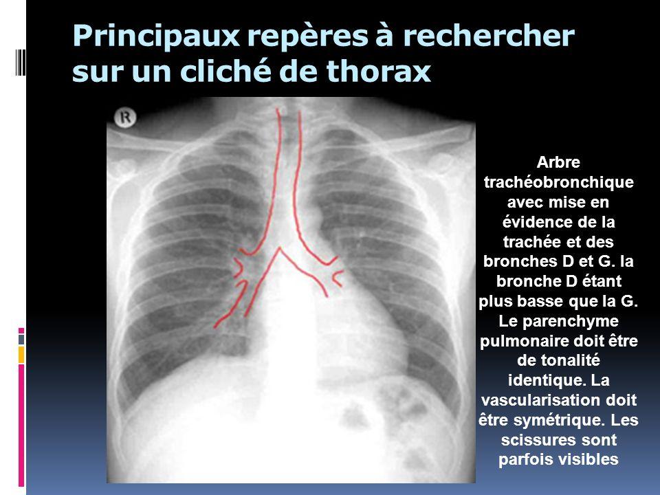 Principaux repères à rechercher sur un cliché de thorax Arbre trachéobronchique avec mise en évidence de la trachée et des bronches D et G. la bronche
