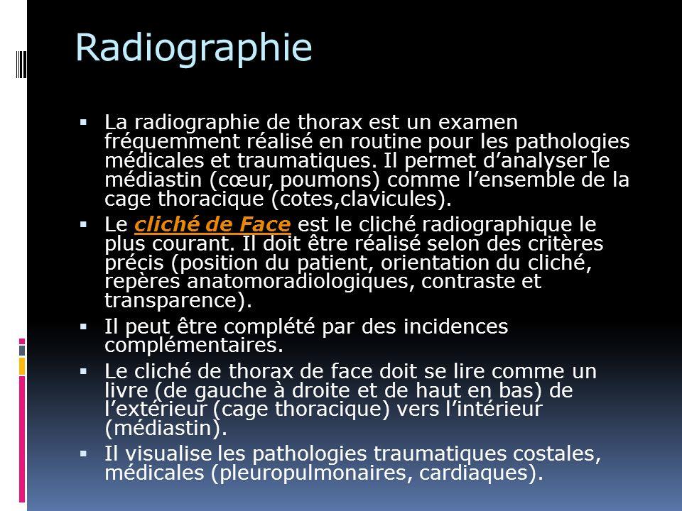 Critères de réalisation dun bon cliché de thorax de face Vérifier Vérifier : Nom et prénom du patient, date du cliché et vérifier que le cliché correspond au malade.