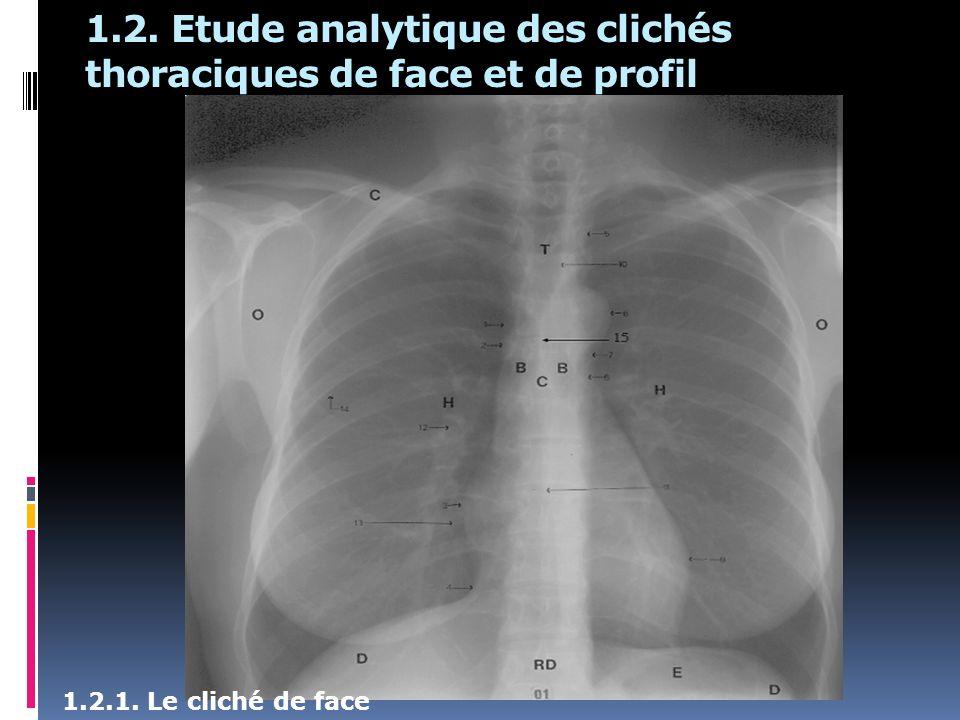 1.2. Etude analytique des clichés thoraciques de face et de profil 1.2.1. Le cliché de face
