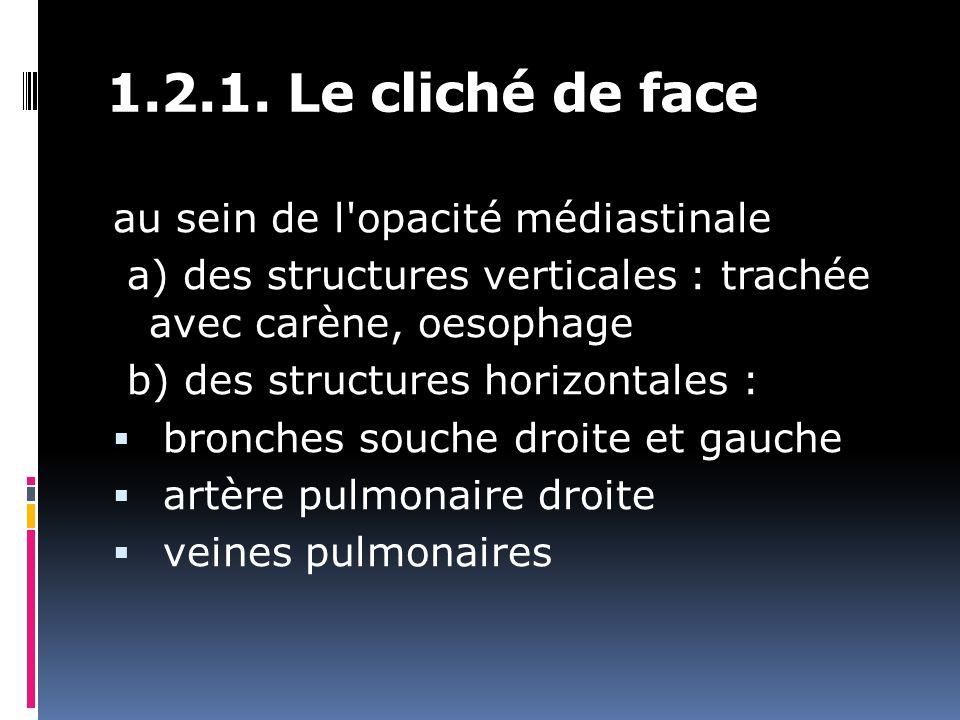 1.2.1. Le cliché de face au sein de l'opacité médiastinale a) des structures verticales : trachée avec carène, oesophage b) des structures horizontale