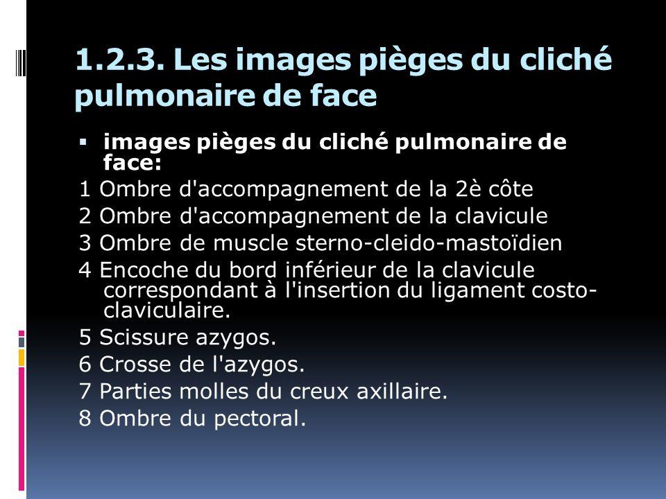 1.2.3. Les images pièges du cliché pulmonaire de face images pièges du cliché pulmonaire de face: 1 Ombre d'accompagnement de la 2è côte 2 Ombre d'acc
