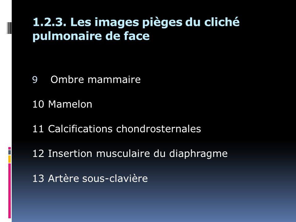 1.2.3. Les images pièges du cliché pulmonaire de face 9 Ombre mammaire 10 Mamelon 11 Calcifications chondrosternales 12 Insertion musculaire du diaphr