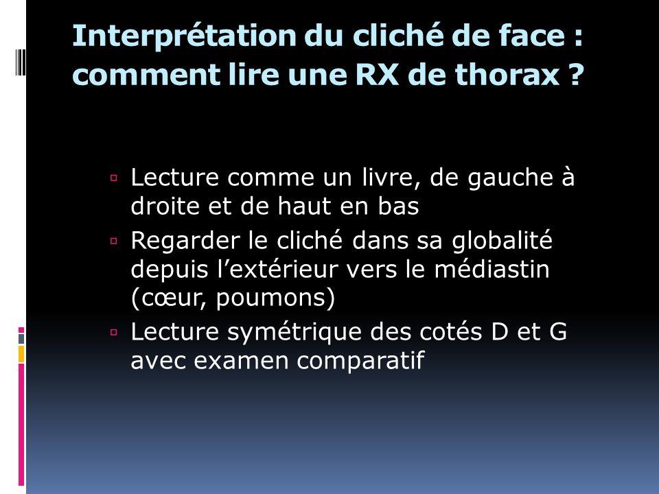 Interprétation du cliché de face : comment lire une RX de thorax ? Lecture comme un livre, de gauche à droite et de haut en bas Regarder le cliché dan