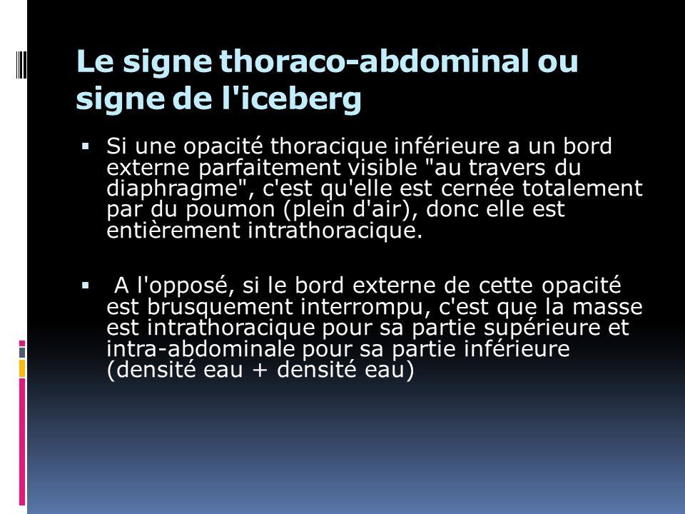 Le signe thoraco-abdominal ou signe de l iceberg Si une opacité thoracique inférieure a un bord externe parfaitement visible au travers du diaphragme , c est qu elle est cernée totalement par du poumon (plein d air), donc elle est entièrement intrathoracique.