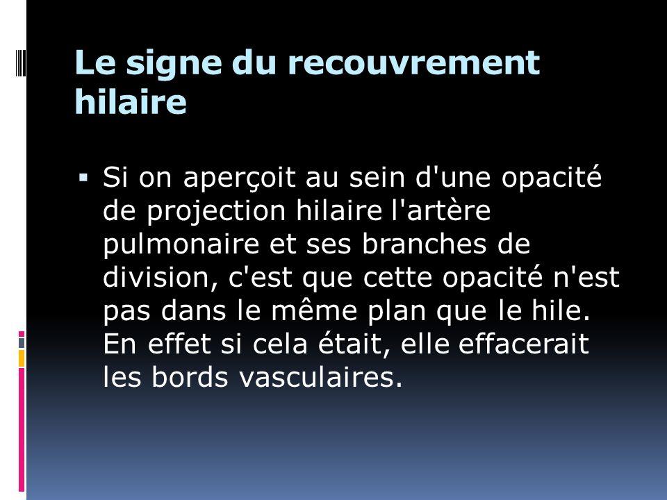 Le signe du recouvrement hilaire Si on aperçoit au sein d'une opacité de projection hilaire l'artère pulmonaire et ses branches de division, c'est que
