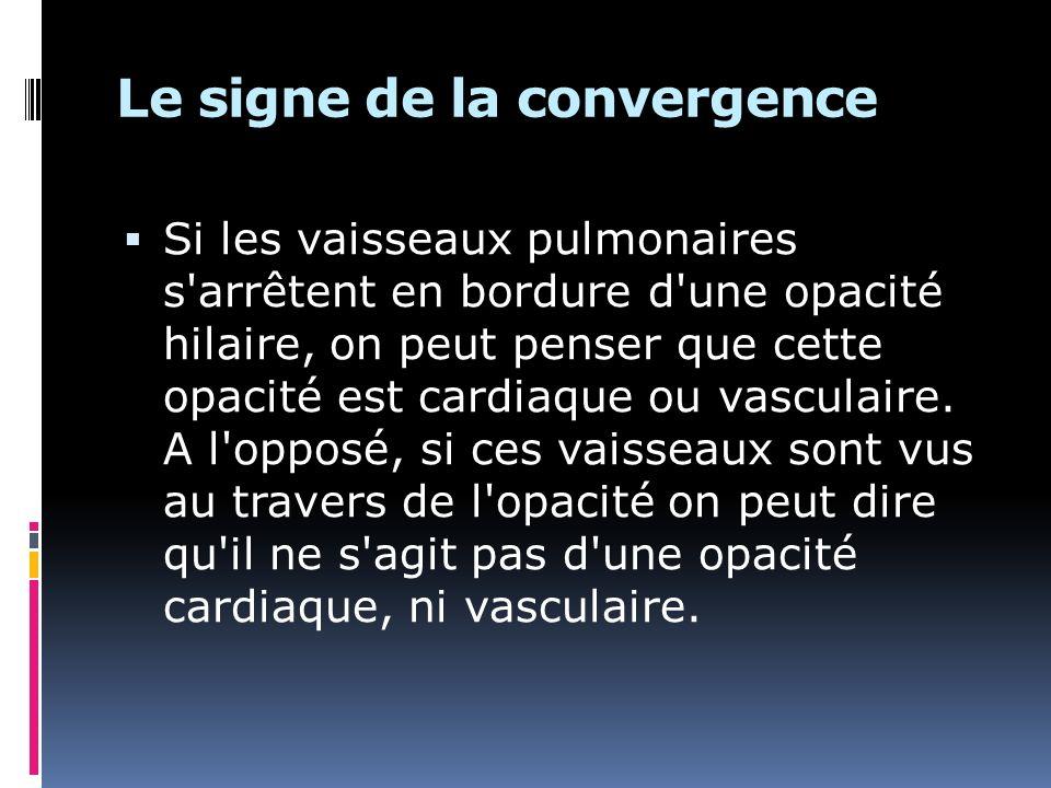Le signe de la convergence Si les vaisseaux pulmonaires s'arrêtent en bordure d'une opacité hilaire, on peut penser que cette opacité est cardiaque ou