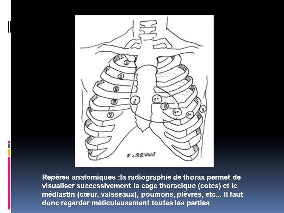 Repères anatomiques :la radiographie de thorax permet de visualiser successivement la cage thoracique (cotes) et le médiastin (cœur, vaisseaux), poumo