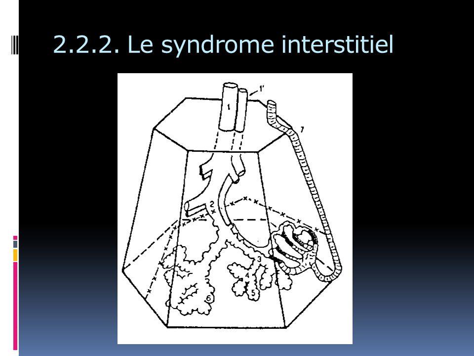 2.2.2. Le syndrome interstitiel