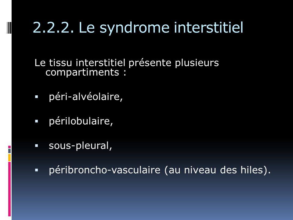 2.2.2. Le syndrome interstitiel Le tissu interstitiel présente plusieurs compartiments : péri-alvéolaire, périlobulaire, sous-pleural, péribroncho-vas