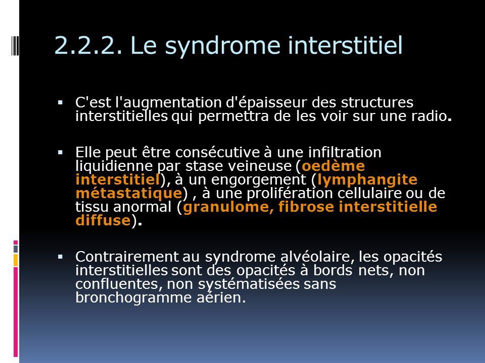 2.2.2. Le syndrome interstitiel C'est l'augmentation d'épaisseur des structures interstitielles qui permettra de les voir sur une radio. Elle peut êtr
