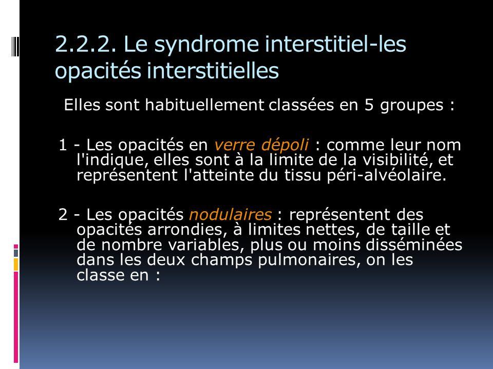 2.2.2. Le syndrome interstitiel-les opacités interstitielles Elles sont habituellement classées en 5 groupes : 1 - Les opacités en verre dépoli : comm