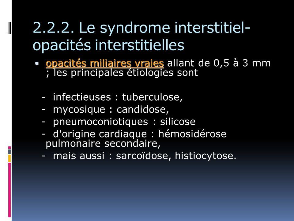 2.2.2. Le syndrome interstitiel- opacités interstitielles opacités miliaires vraies opacités miliaires vraies allant de 0,5 à 3 mm ; les principales é